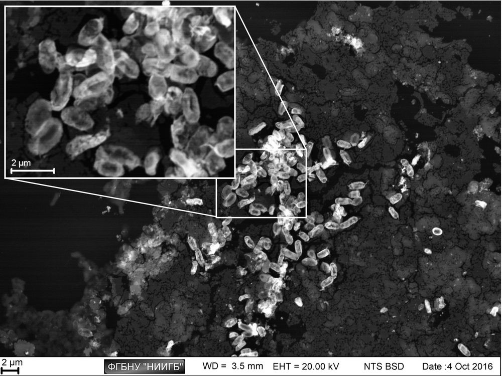 Pseudomonas aeruginosa colony on laboratory plastic: the differences in metabolic activity of the cells of various size are visible  (BioREE-B set, SEM image, BSE mode)