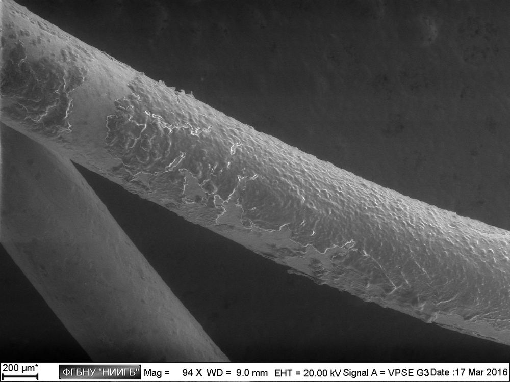 Epithelium with fragments of bacterial biofilm on the surface of a lacrimal catheter  (BioREE set, SEM image, BSE mode)