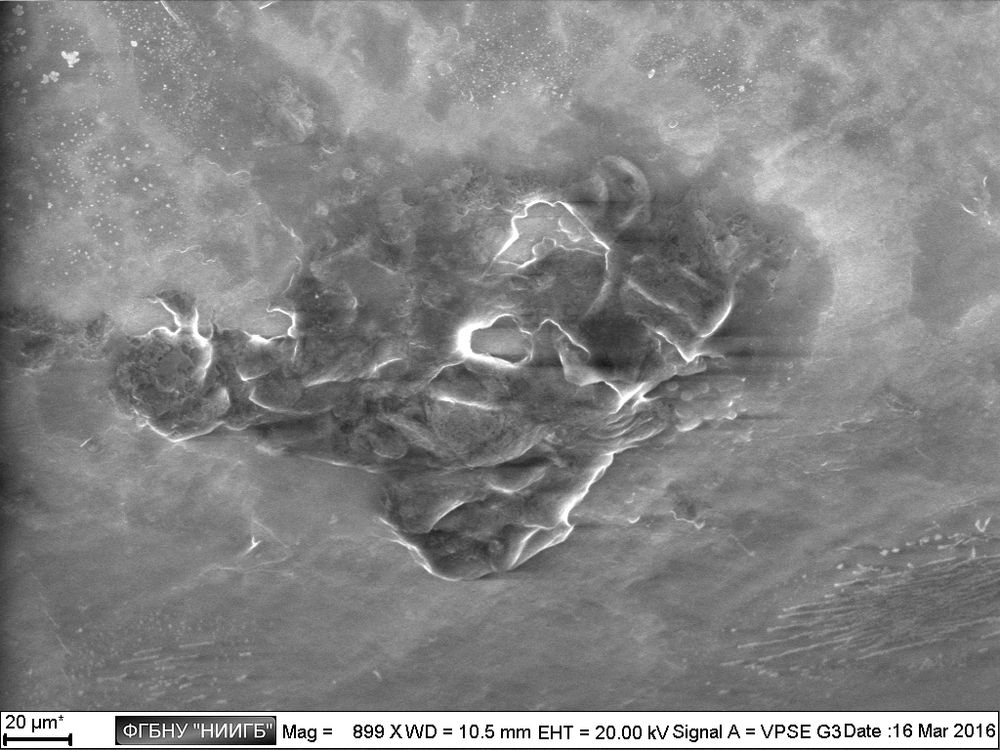 Epithelium segment with fragments of bacterial biofilm on the surface of a lacrimal catheter (BioREE set, SEM image, BSE mode)