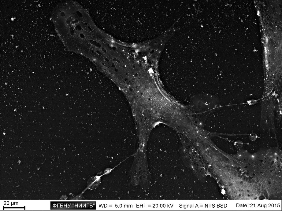 Limbal epithelium cell culture on cultural plastic (BioREE set, SEM image, BSE mode)