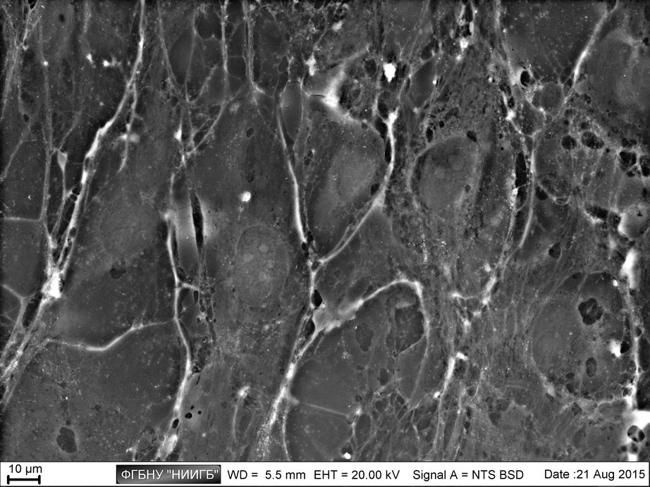 Confluent monolayer made by limbal epithelium cell culture on cultural plastic (BioREE set, SEM image, BSE mode)