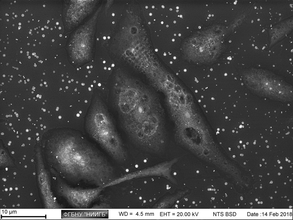 Pv11 line cells (embryonal mass of mosquito larvae) on a cultural plastic (BioREE set, glutaraldehyde postfixation, SEM image, BSE mode)
